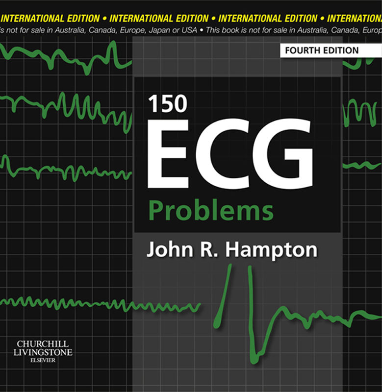150 Ecg Problems 4th Edition Pdf
