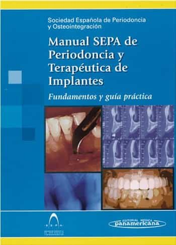Manual Sepa De Periodoncia Y Terapeutica De Implantes: Fundamento S Y Guia Practica por Vv.aa.
