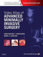 VIDEO ATLAS OF ADVANCED MINIMALLY INVASIVE SURGERY (EBOOK)