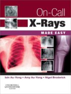 ON-CALL X-RAYS MADE EASY (EBOOK)
