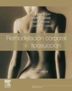 Remodelación Corporal Y Liposucción + ExpertConsult