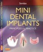 MINI DENTAL IMPLANTS (EBOOK)