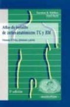 ATLAS DE BOLSILLO DE CORTES ANATOMICOS. TCIRM (VOL. 2): TORAX, AB DOMEN Y PELVIS (2ª ED.)