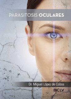 Rapidshare descargar libros gratis PARASITOSIS OCULARES de MIGUEL DR. LOPEZ DE COBOS 9788416849703