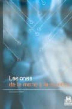 Descargando audiolibros a mp3 LESIONES DE LA MANO Y LA MUÑECA PDB (Literatura española) 9788480198233