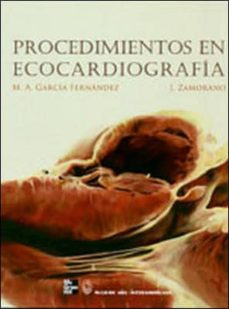 Geekmag.es Procedimientos En Ecocardiografia Image