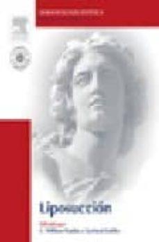 liposuccion (incluye dvd) (dermatologia estetica)-c. w hanke-g. sattler-9788481749243