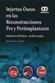 IPod gratis descarga audiolibros INJERTOS OSEOS EN LAS RECONSTRUCCIONES PRE Y PERIIMPLANTARES 9789588760063 (Spanish Edition) de DANILO DI STEFANO PDF